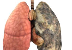 Kışın sigara daha çok zarar veriyor